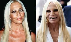6 Worst Plastic Surgery Fails 2